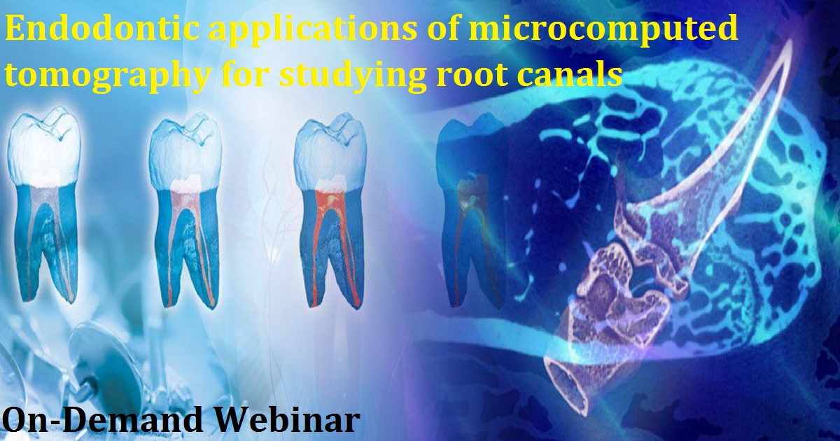 Endodontic applications of microcomputed tomography for studying root canals