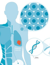 TARGETING CANCER WITH SMARTER SOLUTIONS